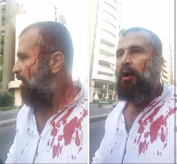 لبنان: الاعتداء على محام بغرض الترهيب يعكس تكريس قمع الحريات