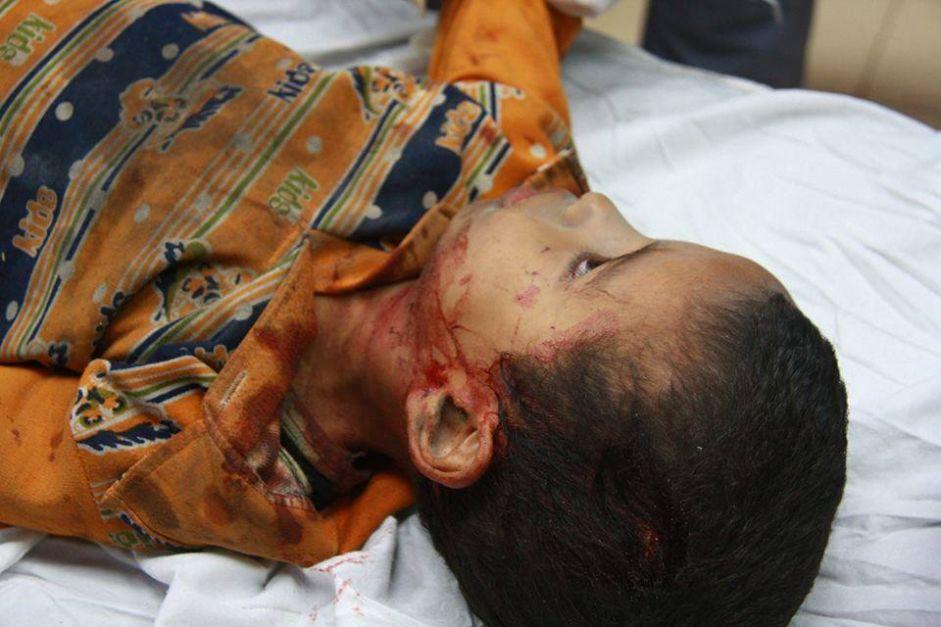 شكوك باستخدام إسرائيل لأسلحة محرمة وغير تقليدية في الحرب على غزة